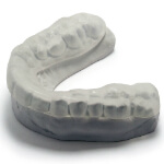 Intelliguard Snoring Mouth Guard